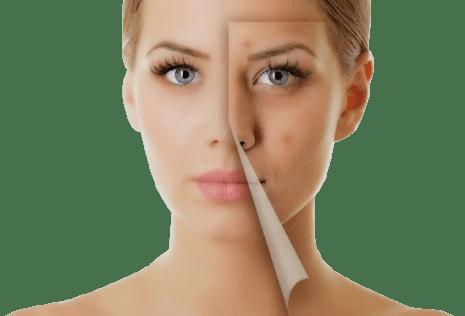 huidproblemenacne